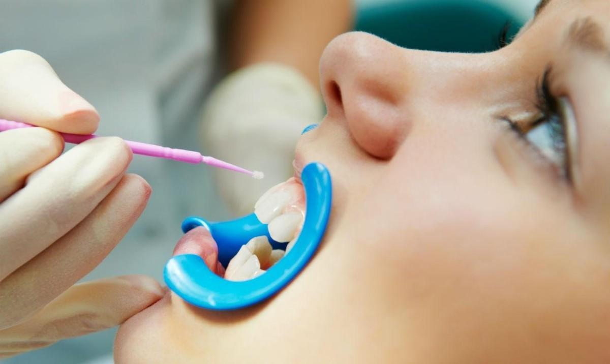 фторирование зубов киев