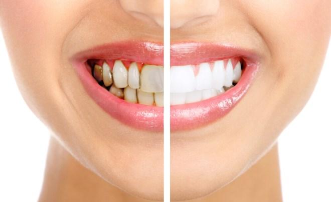 Как удалить зубной камень эффективно и безопасно