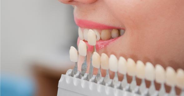 подбор цвета зуба