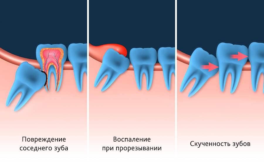 удаление зуба мудрости причины